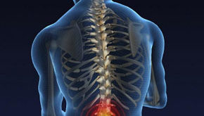 pojasnichnyjj-osteokhondroz