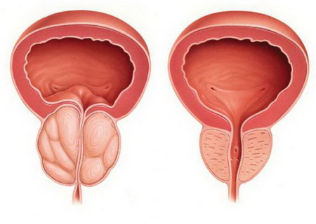 prostata belgilari